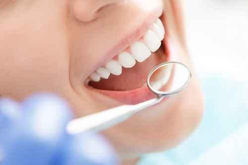 Prophylaxe beim Zahnarzt in Kamen mit professioneller Zahnreinigung.