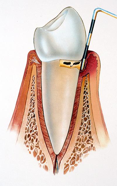 parodontitis-phase3