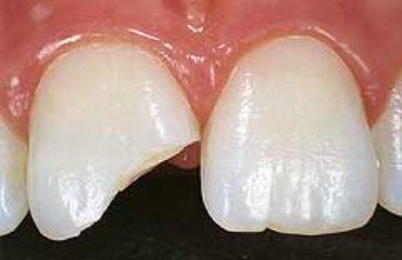 Ein abgebrochener Zahn kann in der Zahnklinik ALL DENTE in Kamen mit Füllungsmaterial wieder aufgebaut werden.