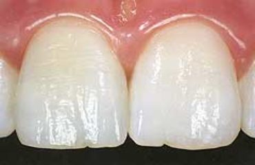 Abgebrochene Zähne lassen sich mit organisch modifiziertem Keramik aufbauen.