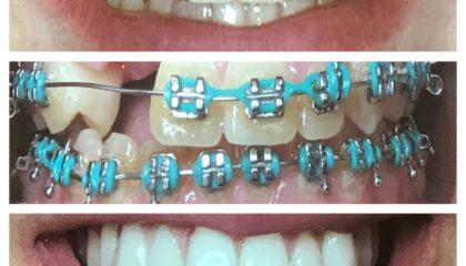 Kieferorthopädische Behandlung zur Begradigung aller Zähne.