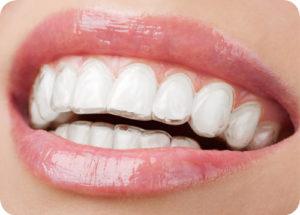 Aligner für eine nahezu unsichtbare Zahnkorrektur.