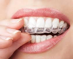 Unsichtbare Zahnschiene bei All Dente.