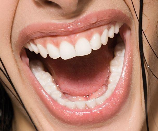 Strahlendes Lächeln Implantaten oder Wurzelbehandlung.