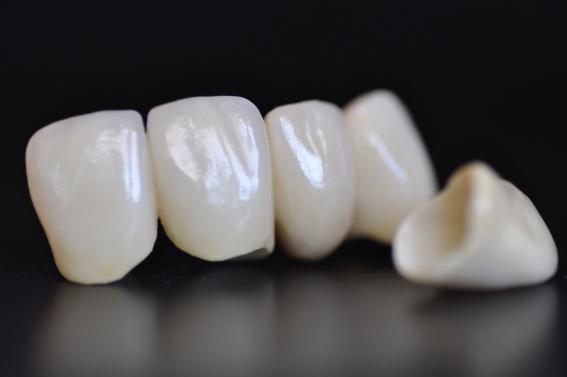 Behandlung mit Vollkeramikbrücke in der Zahnklinik ALL DENTE.