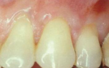 Nachsorge einer Parodontitisbehandlung in unserer Zahnarztpraxis in Kamen.
